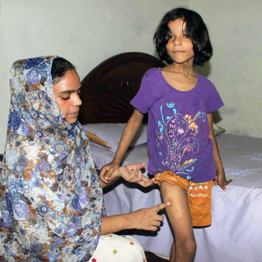 Mehak was badly injured in the bombing four years ago.