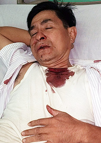Pastor Quang suffered broken ribs, a broken nose and numerous other injuries when he and an associate pastor were attacked on Jan. 18 in southern Vietnam.