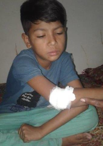 A young boy from Pakistan who was injured by a bomb explosion on Easter Sunday